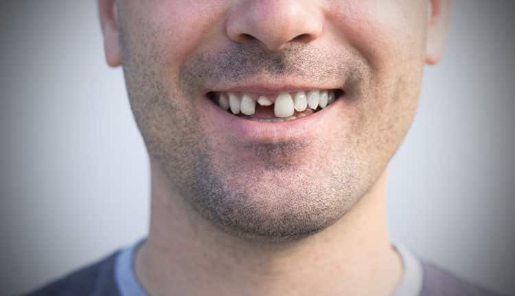 man-with-broken-tooth