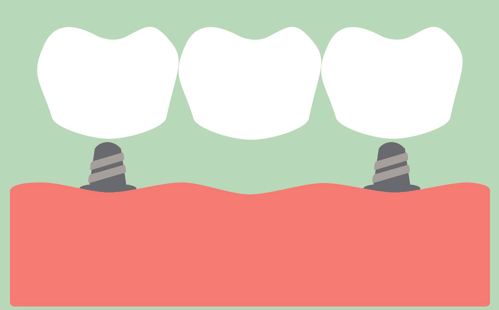 What is dental crown and dental bridge