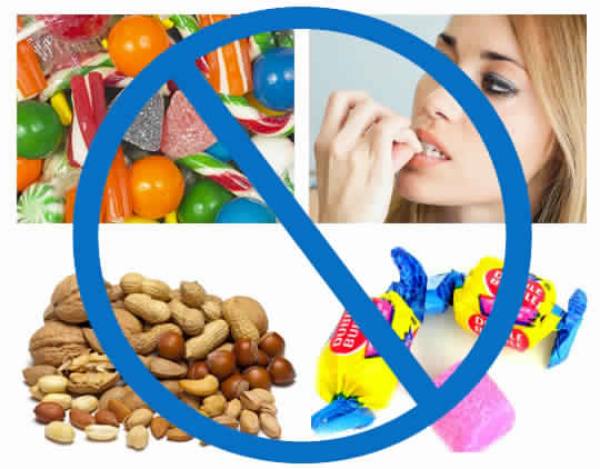 Foods to avoid during braces treatment