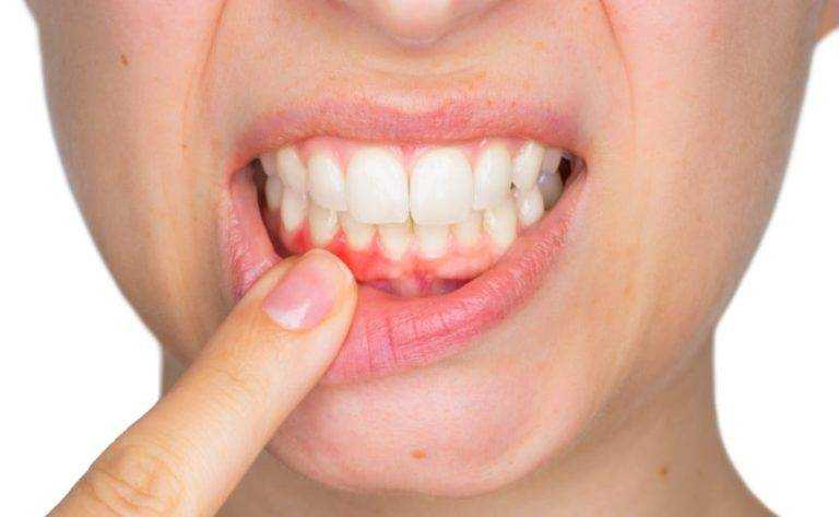 swelling and bleeding of your gums