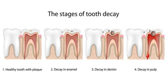 Tooth-Decay-2