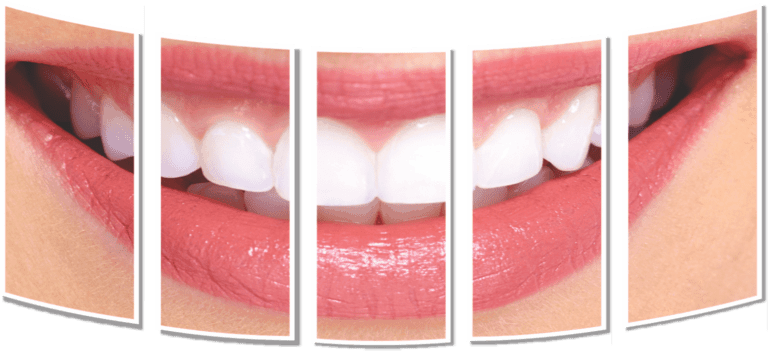 dental treatment in emi