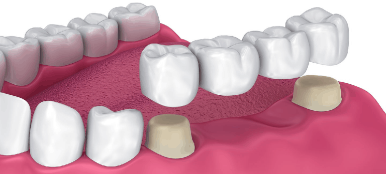 Dental crown & tooth bridge