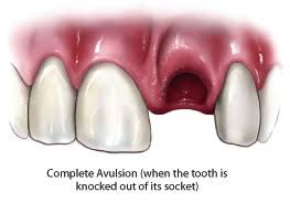 Avulsed-tooth2-1