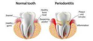 Periodontal-disease-1