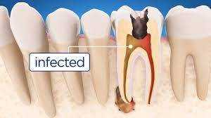 Root Canal- Infected Tooth