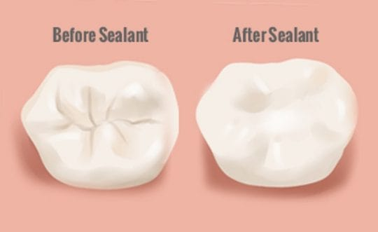 Sealants before and after