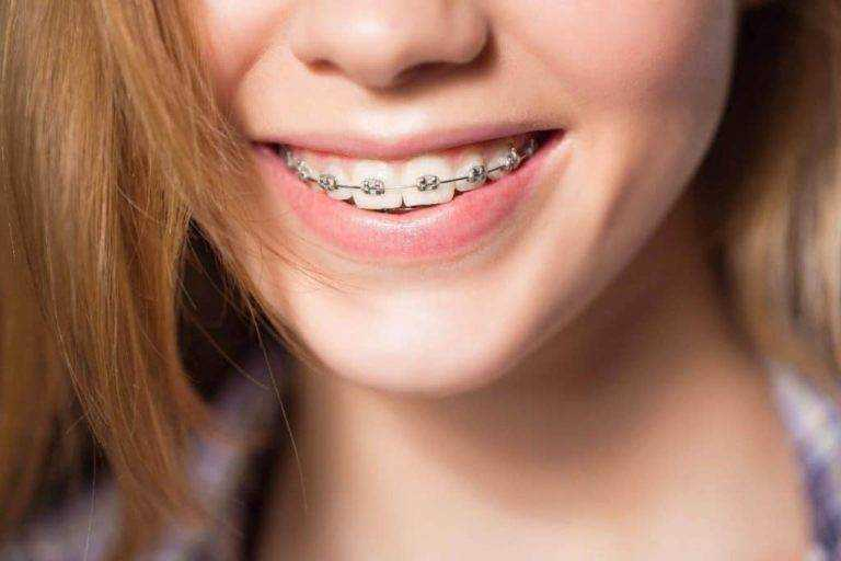 know about your braces