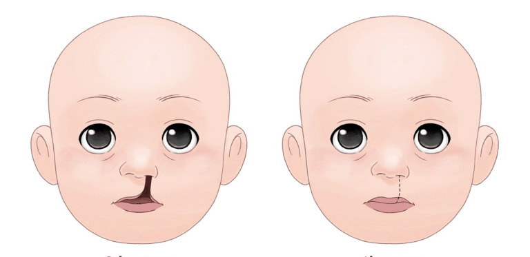 cleft-lip-and-palate