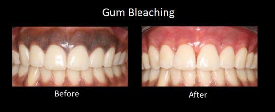Gum-Bleaching-before-and-after
