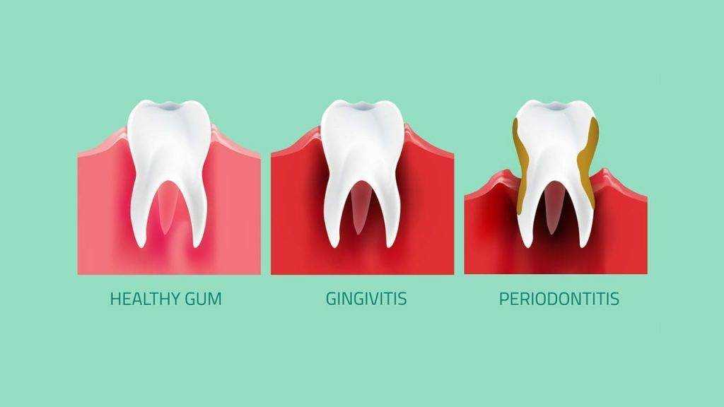 gum-disease-graphic-min