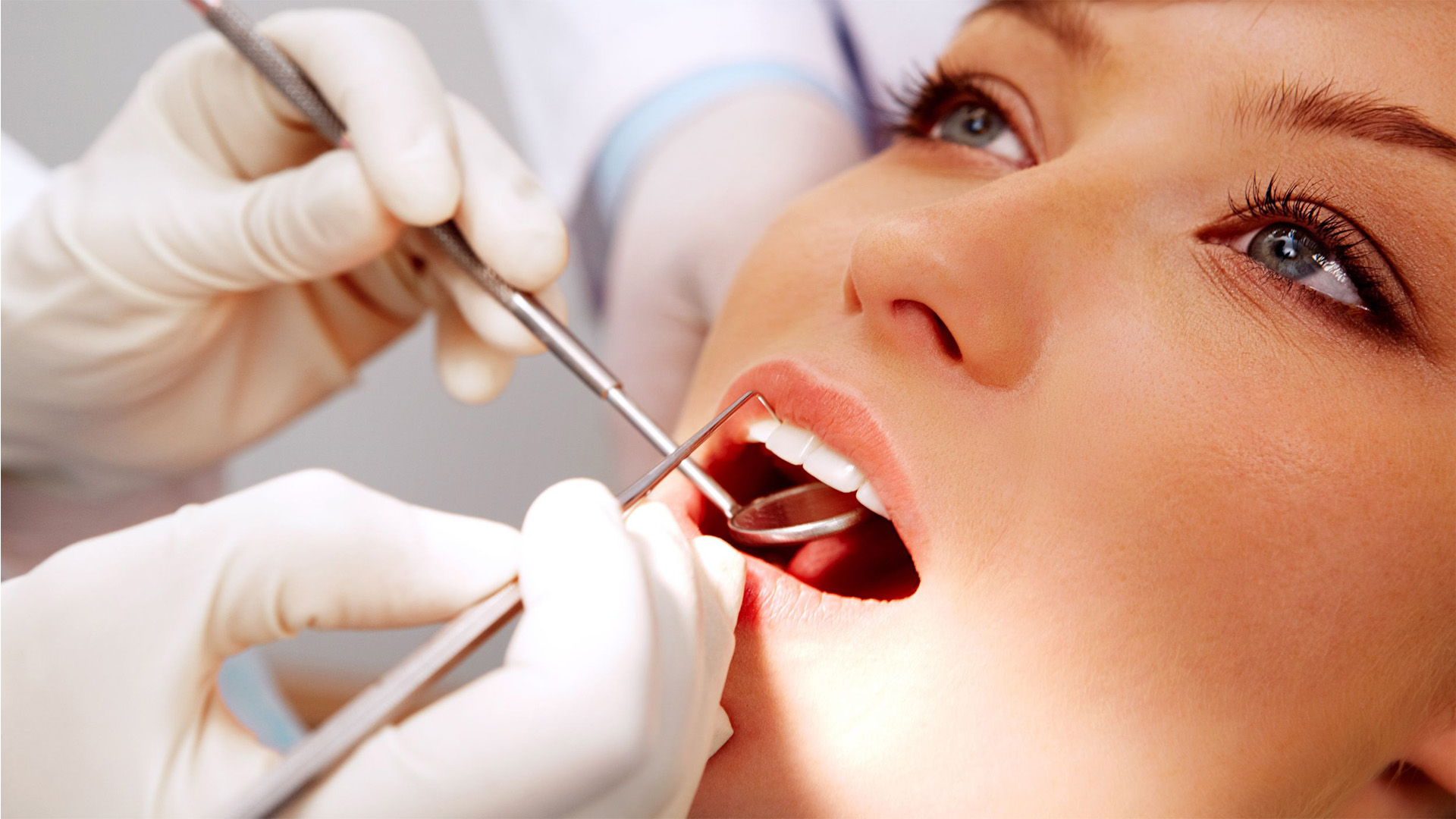 Dental-Fillings