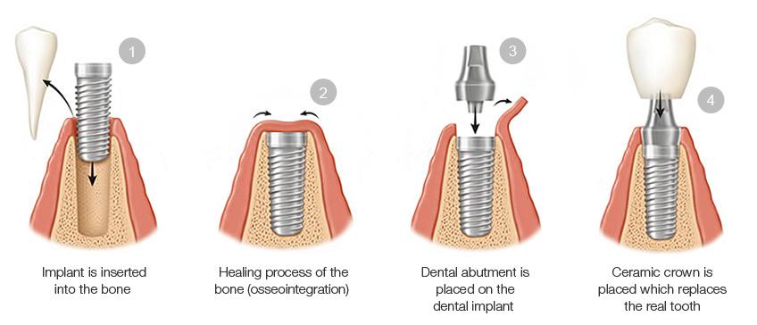 Dental Implant Procedure Steps