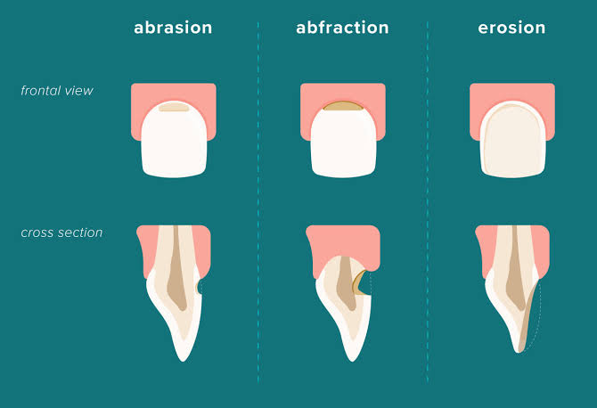 Tooth-Abrasion-and-Erosion