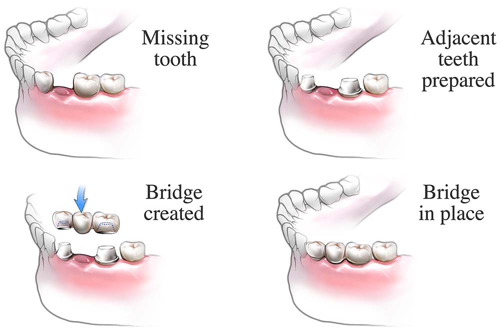 dental-bridge-procedure
