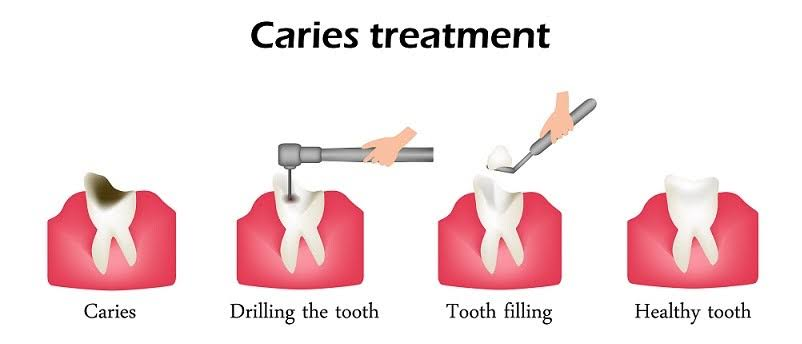 Dental Filling Types and Procedure in Surat