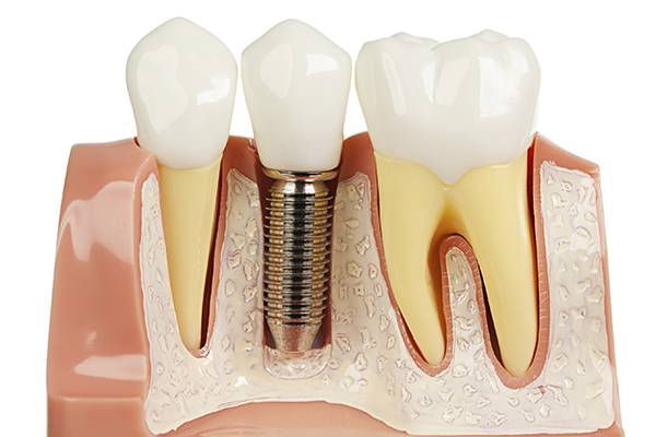tooth-implants