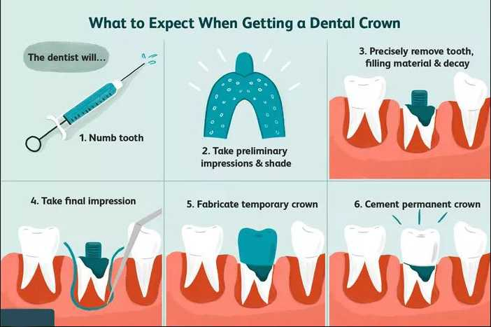 Crown-Procedure