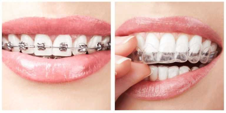clear-aligners vs conventional braes