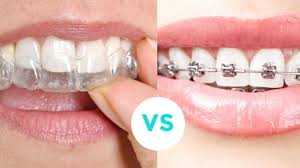 clear-braces-or-aligners