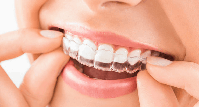 An invisible braces