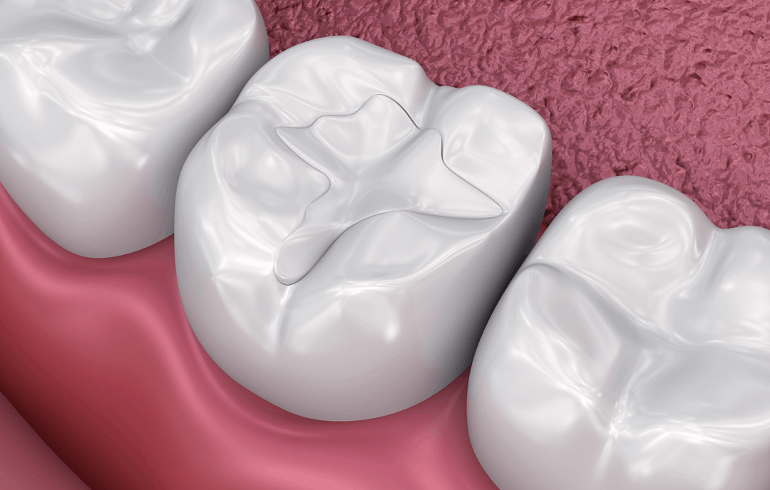 benefits of dental sealant