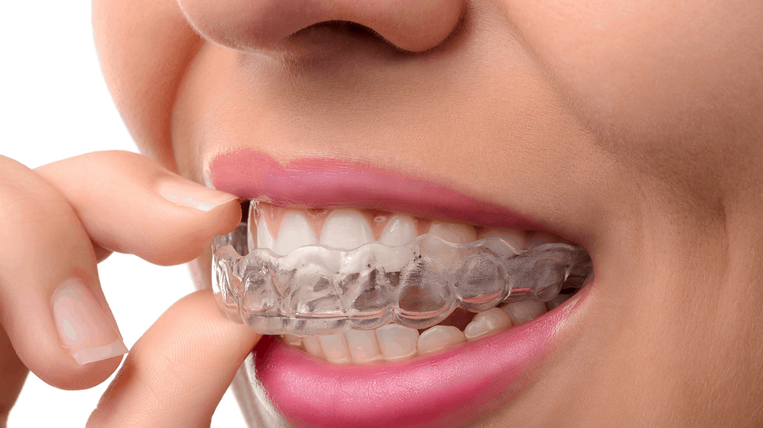 clear-aligners