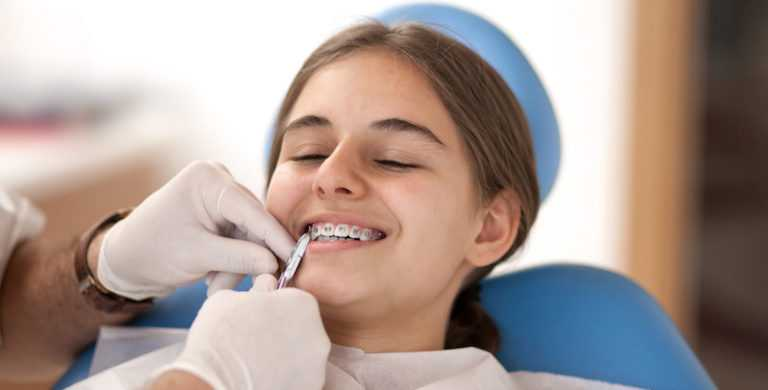 How_to_Get_my_Braces_off_Faster