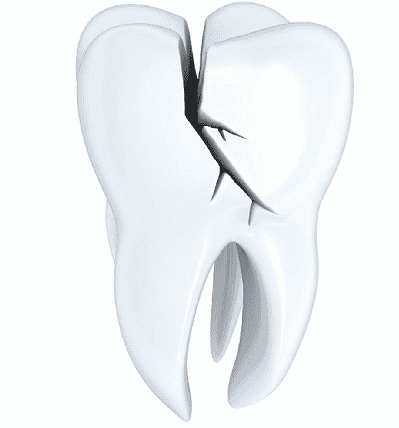 cracked-tooth