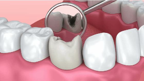 tooth decay