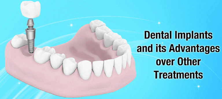 dental-implants-and-its-benefits