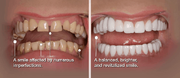 smile makeover to correct your smile