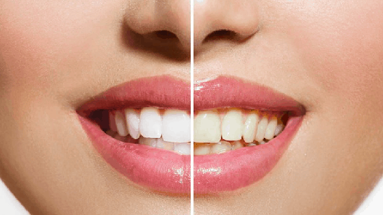 Best Teeth Whitening Treatment Near Me Best Teeth Whitening Cost
