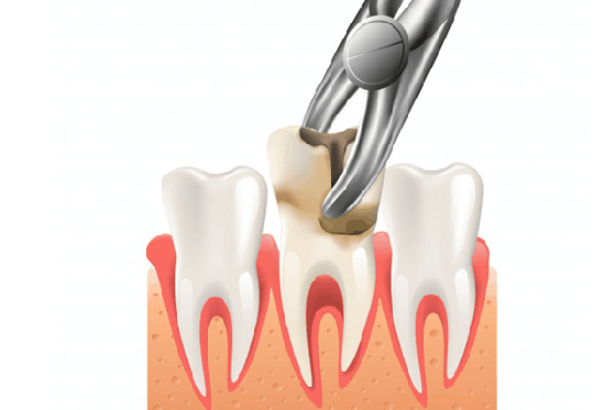 Tooth Extraction Cost In India Dental Extraction Treatment In India