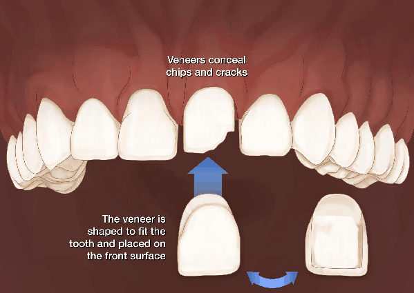 veneers procedure