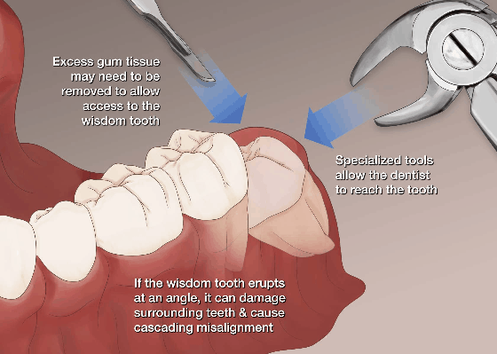 wisdom tooth extraction procedure