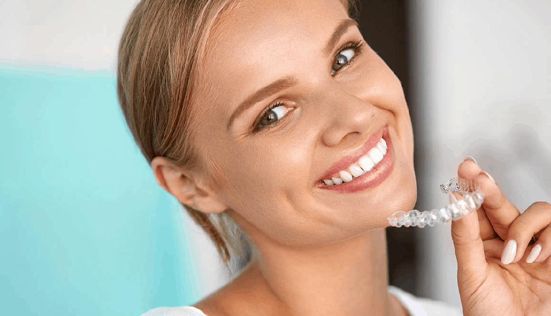 An age for invisalign