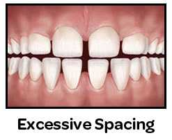 Excessive Spacing