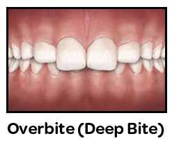 Overbite Deep Bite