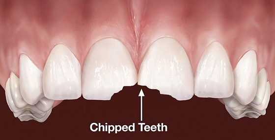 chipped-teeth