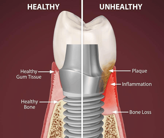 dental problems with implant