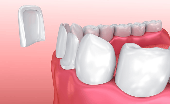 difference between crowns and veneers