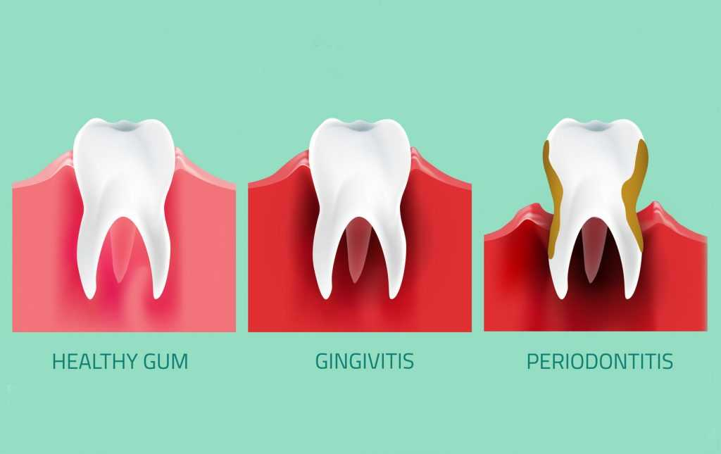 Difference between gingivitis and periodontitis