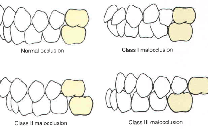 different types of malocclusion