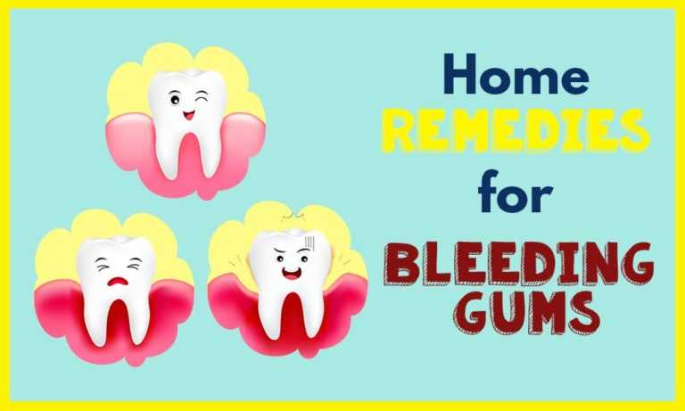 home-remedies-for-bleeding-gums