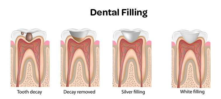 how-is-a-teeth-filling-done