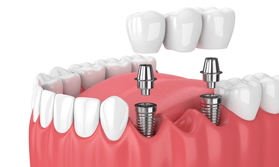 importance of replacing missing tooth