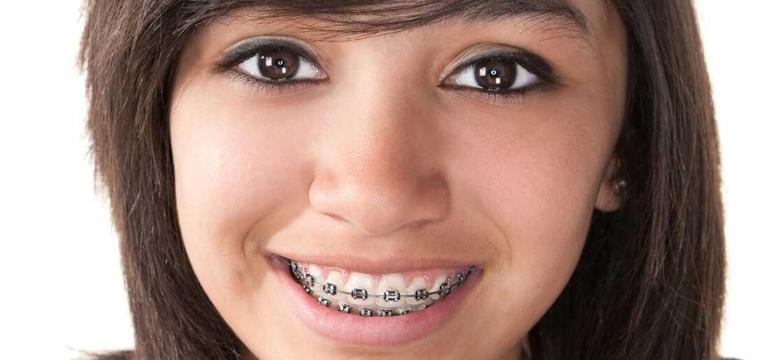 orthodontic-braces-treatment