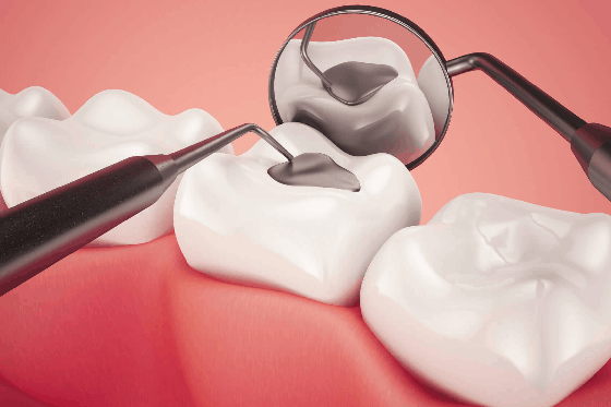dental filling to prevent cavities