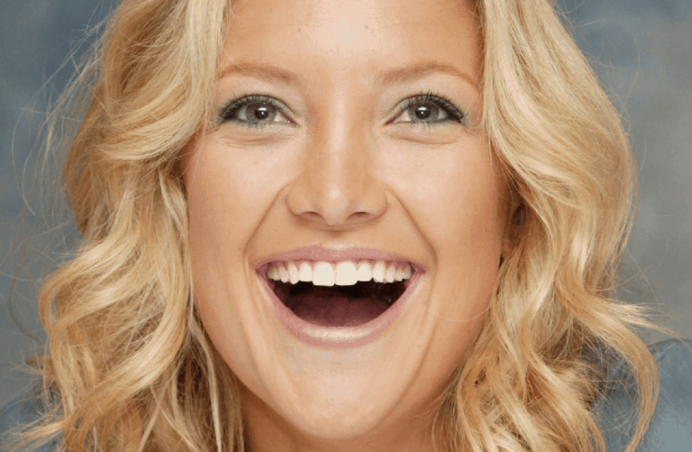 teeth veneers pros and cons